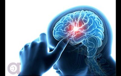 Le Cerveau – Organe le plus important du corps humain