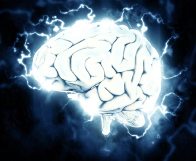 Migraine Cerveau