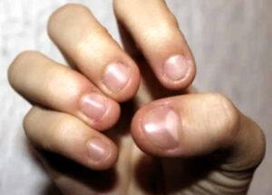 Onychophagie (ongles rongés)